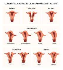 Congenital Abnormalities of the Female Reproductive Tract