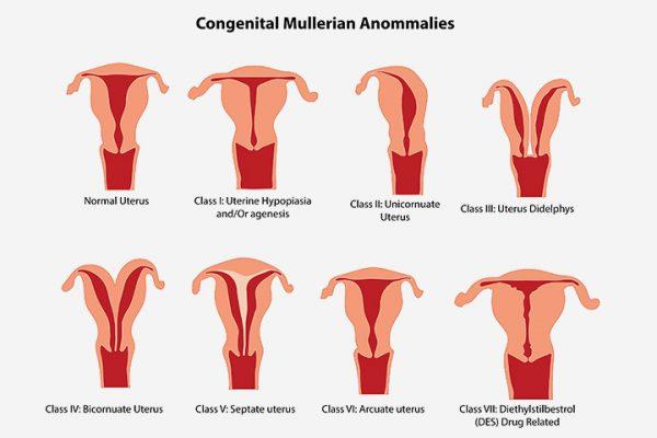 Congenital-Uterine-Abnormalities
